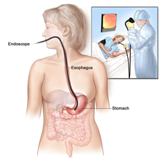 Endoscopy drawing